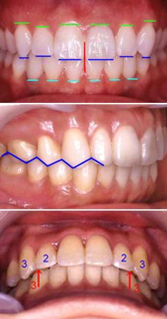 上下の前歯